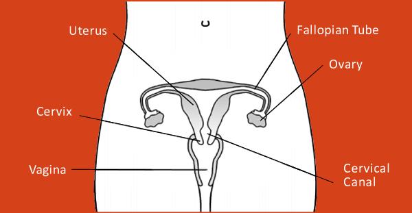 endometrial cancer hong kong de ce este tapeworm